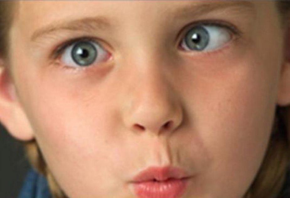 Mắt lác là một dị tật của mắt
